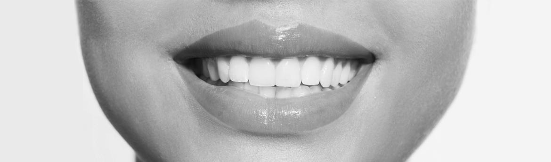 wybielanie zębow - kobieta z szerokim uśmiechem i białymi zębami